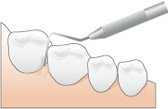 歯周ポケットの測定