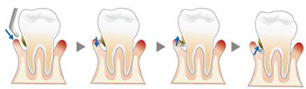 歯石除去のイメージ