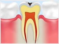 エナメル質の虫歯